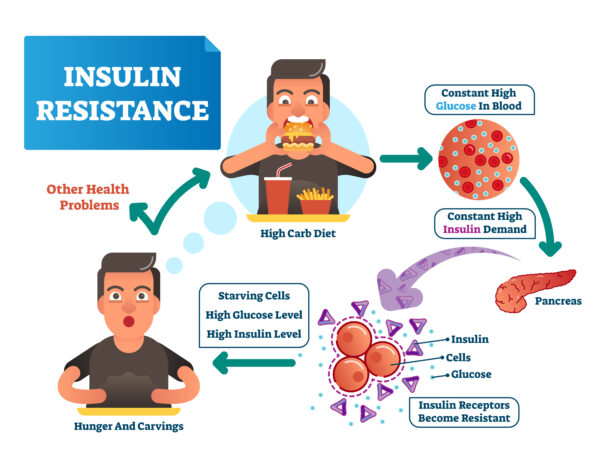 Insulin resistance causes being hungry